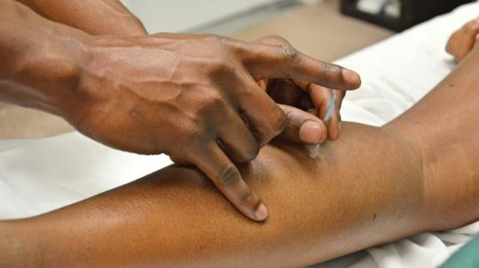 Acupuncture 2277444 1920