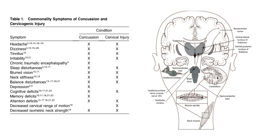 Concussion3 4